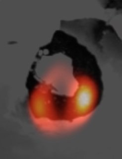 <p>The LBT image of the lava lake of the volcano Loki on Jupiter's moon Io (orange) laid over a Voyager image of the same structure (dark shade), as captured by space probe Voyager 1 (dark shading).</p> <p><em> </em></p>