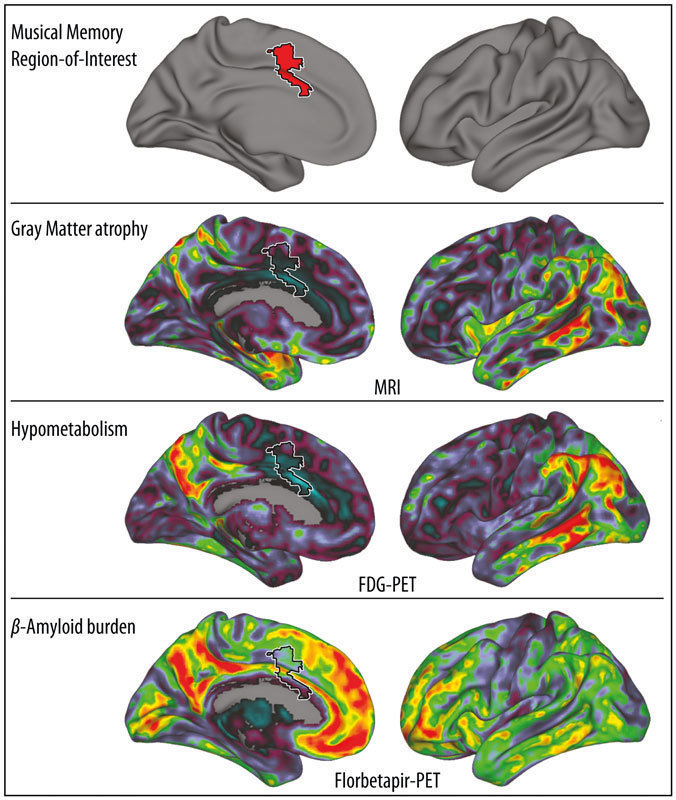 music and memory research Dancing and the brain that music has a very stimulating effect on much of the research on the benefits of the physical activity associated with.