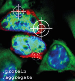 To visualize protein aggregates (red) under the microscope, they have to be stained previously. The cellular nucleus was stained blue and the mRNA, the construction manual for proteins, was stained green.